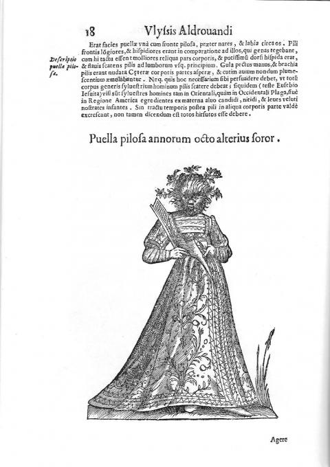 Fig. 1 - Puella pilosa annorum octo alterius soror