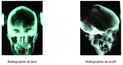 Figure 2 : Radiographie de face et de profil sur la tête de momie B29. Figure 2: Fullface and profile radiography of mummified head B29.