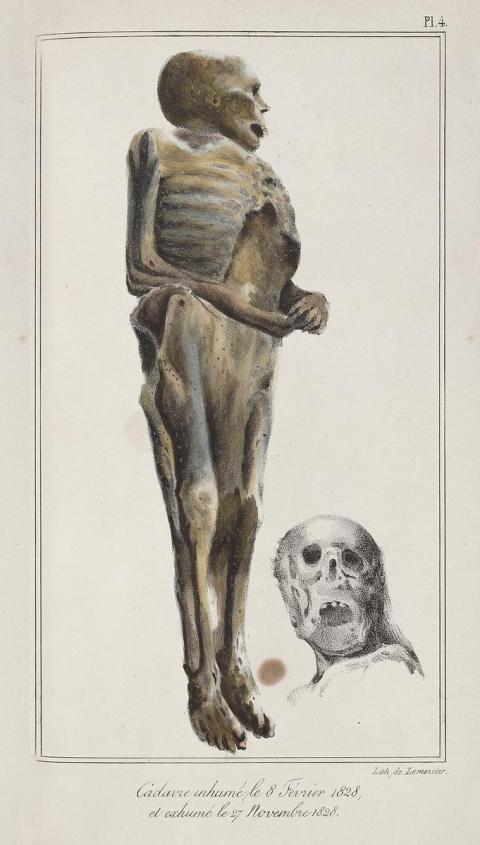 Cadáver estudiado por Orfila y Lesueur en su obra de medicina forense