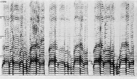 Fig. 8: Imitation par Trân Quang Hai du chant xhosa de la fig. 7.