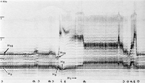 Fig. 9: Tuva (URSS). CD Smithsonian/Folkways, nº 1. Style «Steppe» kargiraa, par Fedor Tau. Début du chant.