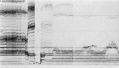 Fig. 13: Tuva (URSS). CD Smithsonian/Folkways, nº 14. Pièce intitulée borbannadir, par Anatolii Kuular.