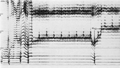 Fig. 23: Tuva (URSS). CD Smithsonian/Folkways, nº 3. Style sigit, pièce «Alash» par Mergen Mongush.
