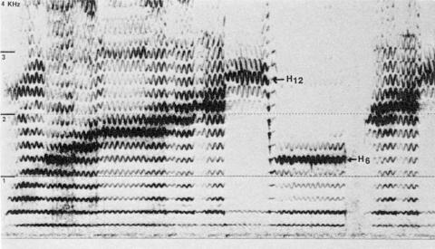 Fig. 25: Mongolie. Disque Tangent, face B, plage 1. Pièce intitulé «Mouth music», par Sundui (cf. aussi le film Le chant des harmoniques). Style non nommé sur la notice du disque, mais sans doute «khöömi de ventre», le style préféré de Sundui.