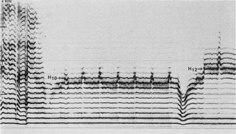 Fig. 26: Imitation par Trân Quang Hai du style sigit tuva de la fig. 23.