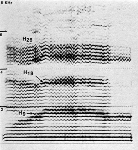 Fig. 31: Même signal que fig. 29.