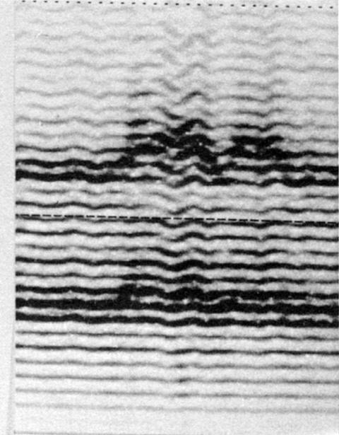 Fig. 42: Kargiraa tuva (cf. fig. 5). Vibrato «en ondulations».
