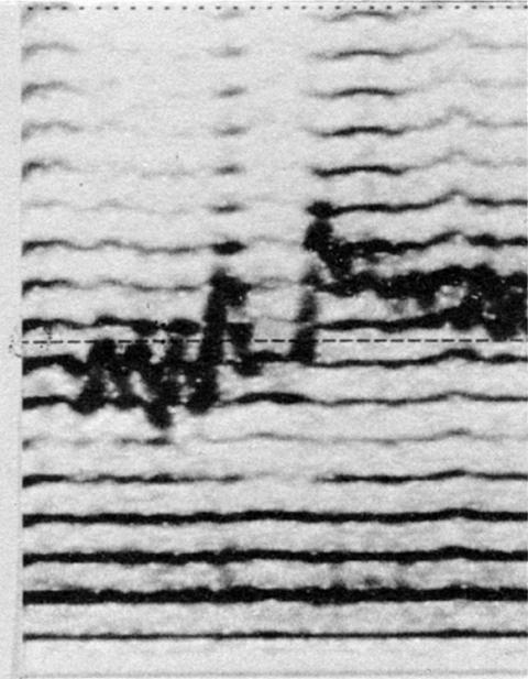 Fig. 46: Ezengileer tuva (cf. fig. 21). Accents rythmiques marqués par des traits verticaux alternativement au-dessus et au-dessous de la ligne horizontale.