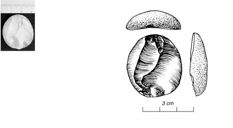 Figure 16 - Position du bulbe 3 : double opposé, même surface (photo G. Gratton)Figure 16 - Bulbar position 3 : double opposed on same surface (picture by G. Gratton)