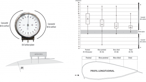 Figure 20 - Planarity of the cortical surfaces exploited at the Observatoire Cave. The calculation of the planarity is based on the measure of 4 equidistant points taken in the axis of debitage of the large flakes. The data appearing on the spherometer (given in dioptries, image on the left) indicate a curvature radius ( R ). These data, expressed on a boxplot (on the right), express a regular diminution of the curvature radius; which tends to be almost a flat surface on the distal part.