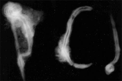 Figure 14 : Radiographie des fibules.Figure14: Radiograpgy of the fibulae.
